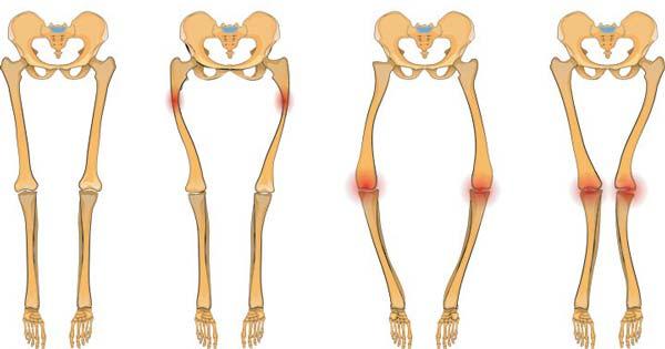 Фото изменений строения костей нижних конечностей при рахите