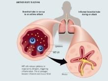 Бронхиальная астма. Симптомы бронхиальной астмы