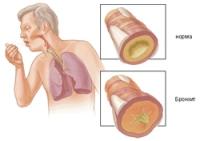 Хронический обструктивный бронхит. Симптомы и лечение