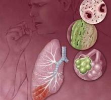 Пневмония. Симптомы и лечение пневмонии