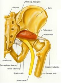 Воспаление седалищного нерва. Симптомы и лечение