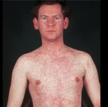 Сыпь при кори на 2 день выпания