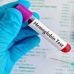 Таблица возрастной нормы гемоглобина