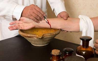 Лечение при повышенном гемоглобине в средние века