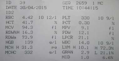 Распечатка общего анализа крови с расшифровкой процентного состава лейкоцитов