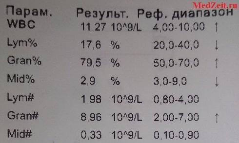 Показатели лейкоцитов в распечатке: Lym Gran Mid