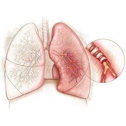 Применение Амброксола при инфекциях дыхательных путей и легких
